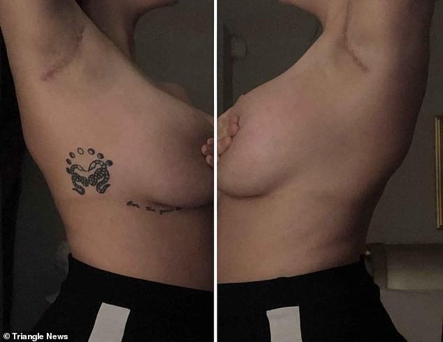 У 22-летней британки выросло четыре груди вместо двух | Паранормальные новости
