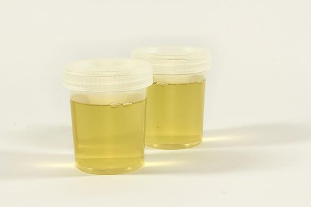 Пивоварня в мочевом пузыре: Тело женщины само по себе производит спирт