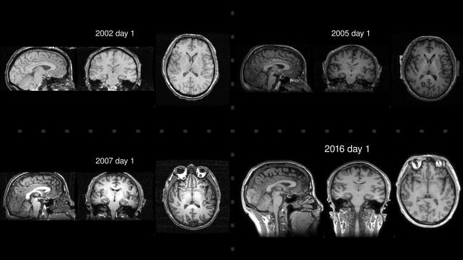 Медитация замедлила старение мозга буддийского монаха на восемь лет