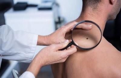 Врач-онколог назвала начальные симптомы меланомы