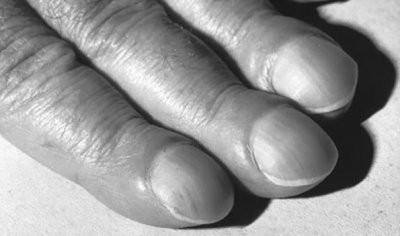 Врач назвал признаки цирроза печени, которые появляются на руках