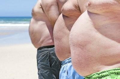 Ученые заявили, что ожирение в 6 раз увеличивает риск развития диабета 2 типа