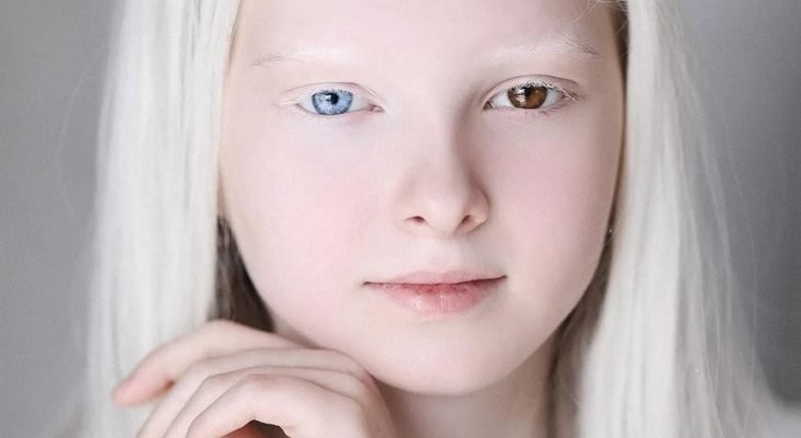 Чеченская девочка-альбинос с разными глазами поразила Сеть необычной красотой