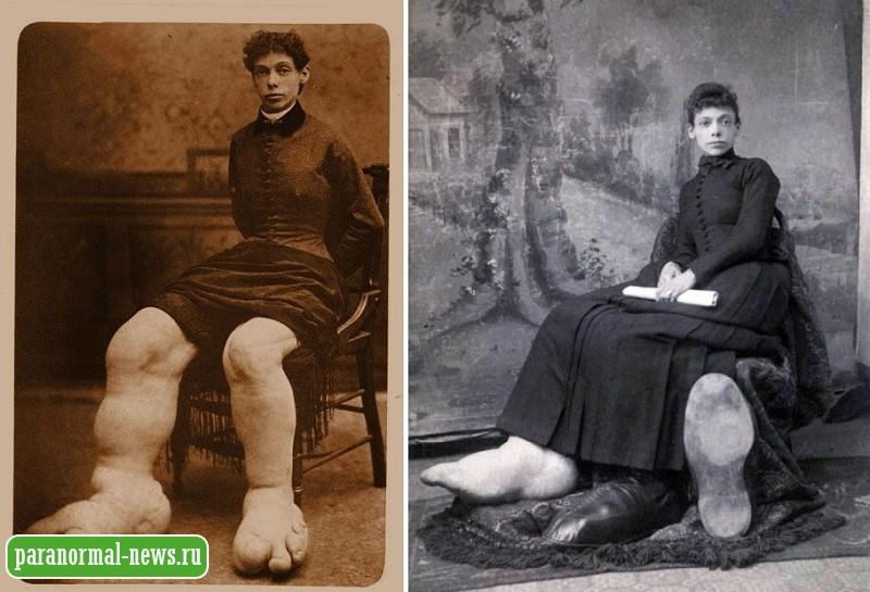 Фанни Миллс - История женщины с огромными ногами