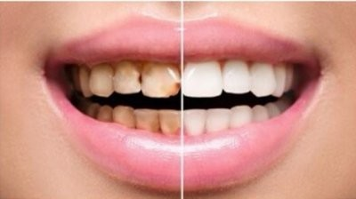 Стоматолог рассказал, как восстановить тетрациклиновые зубы