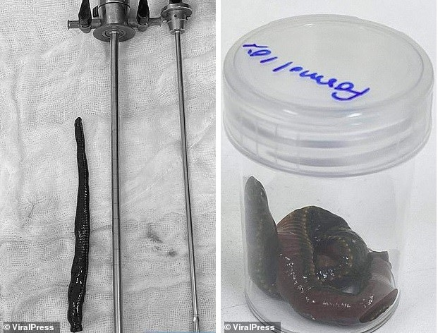 Пиявка залезла в половой орган мужчины и высосала пол-литра крови - Паранормальные новости