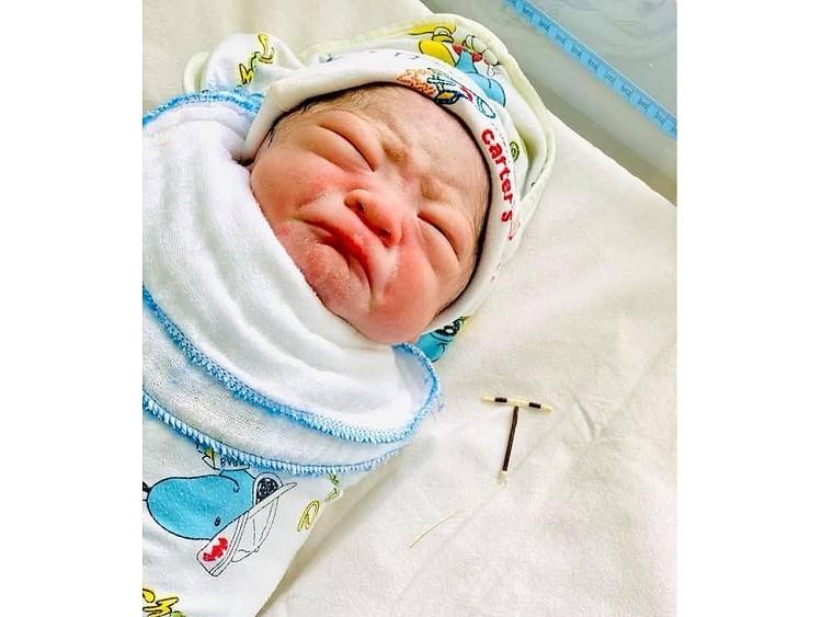 Младенец родился с противозачаточной спиралью - Паранормальные новости