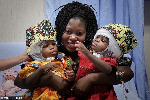 В Ватикане удачно разделили сросшихся головами сиамских близнецов - Паранормальные новости