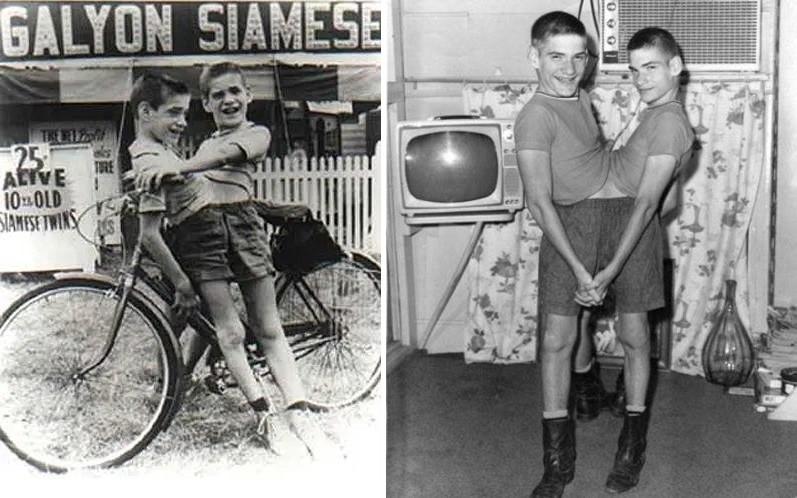 Скончались самые старые сиамские близнецы в мире, у которых было одно тело на двоих - Паранормальные новости
