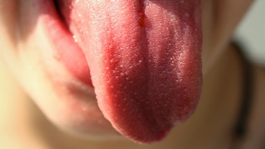 Рак языка: медики назвали симптомы, которые не стоит игнорировать
