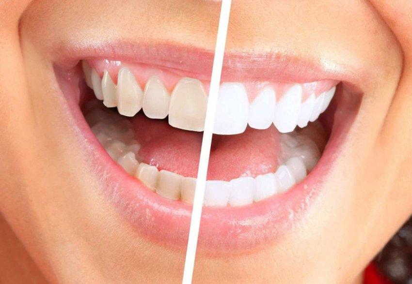 Белоснежная улыбка без вреда для зубов или почему стоит тратиться на качественное отбеливание зубов – рассказывает стоматолог Юлия Сапожникова