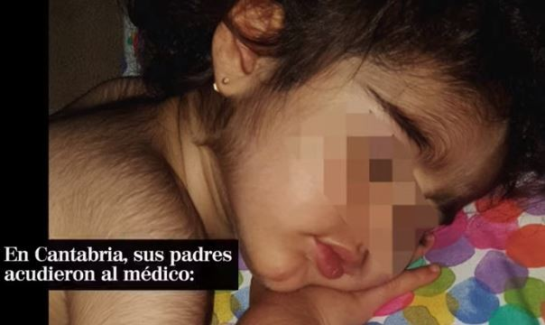 В Испании из-за ошибки с лекарствами дети обросли волосами как оборотни - Паранормальные новости