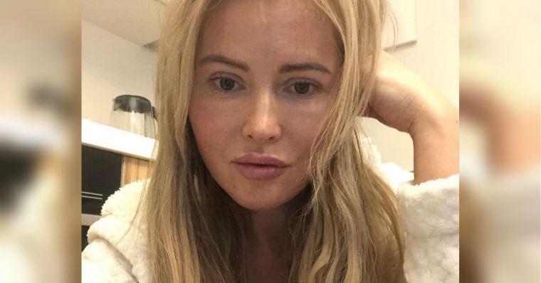 Все симптомы коронавируса: Дана Борисова пожаловалась на плохое самочувствие