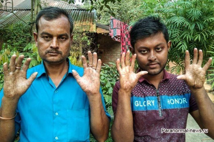 Мужчины этой семьи оказались генетически лишены отпечатков пальцев - Паранормальные новости