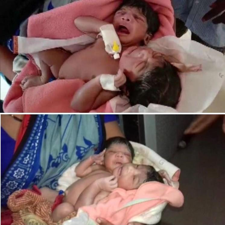 В Индии родился двухголовый и трехрукий ребенок - Паранормальные новости