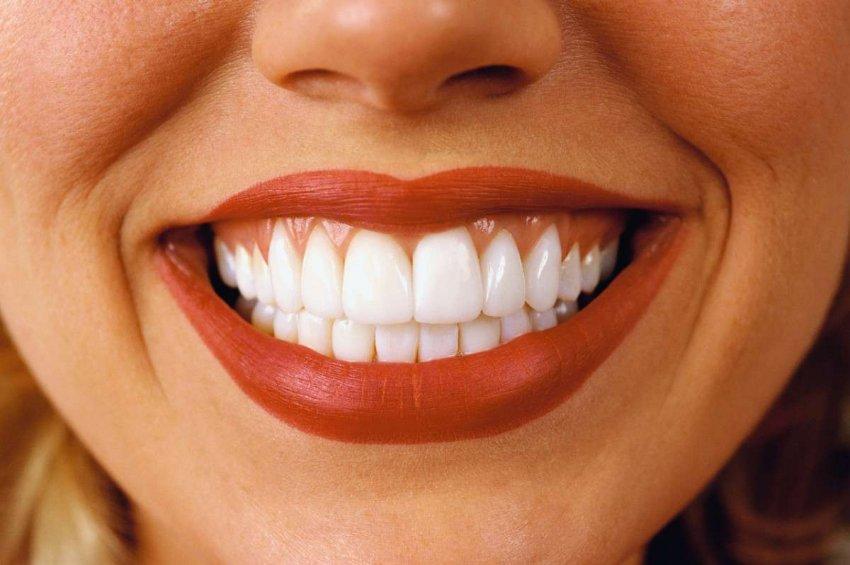 Голливуд снова в тренде: как выбрать оптимальный оттенок зубов?